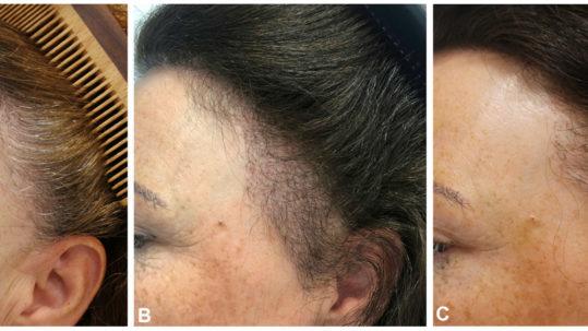Trasplante en alopecia frontal fibrosante