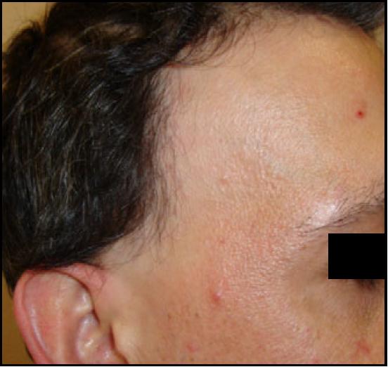 clinica caida del cabello madrid