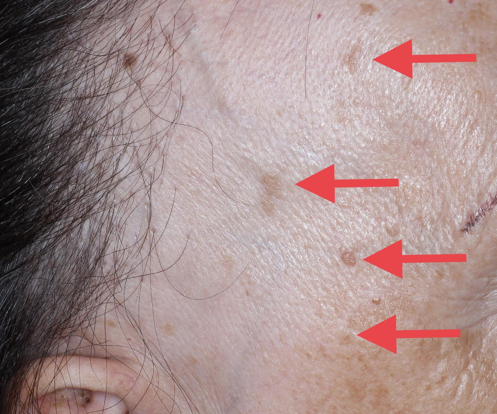 Doctor David Saceda Dermatologo Tricologo Alopecia Trasplante De Pelo Madrid Clinica Grupo Pedro Jaen Tratamiento Alopecia Frontal Fibrosante Femenina Dutasterida Dutasteride Finasterida Finasteride Cicatricial Mujer