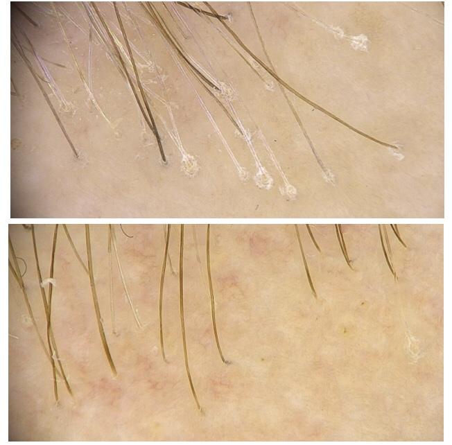 solucion alopecia frontal fibrosante