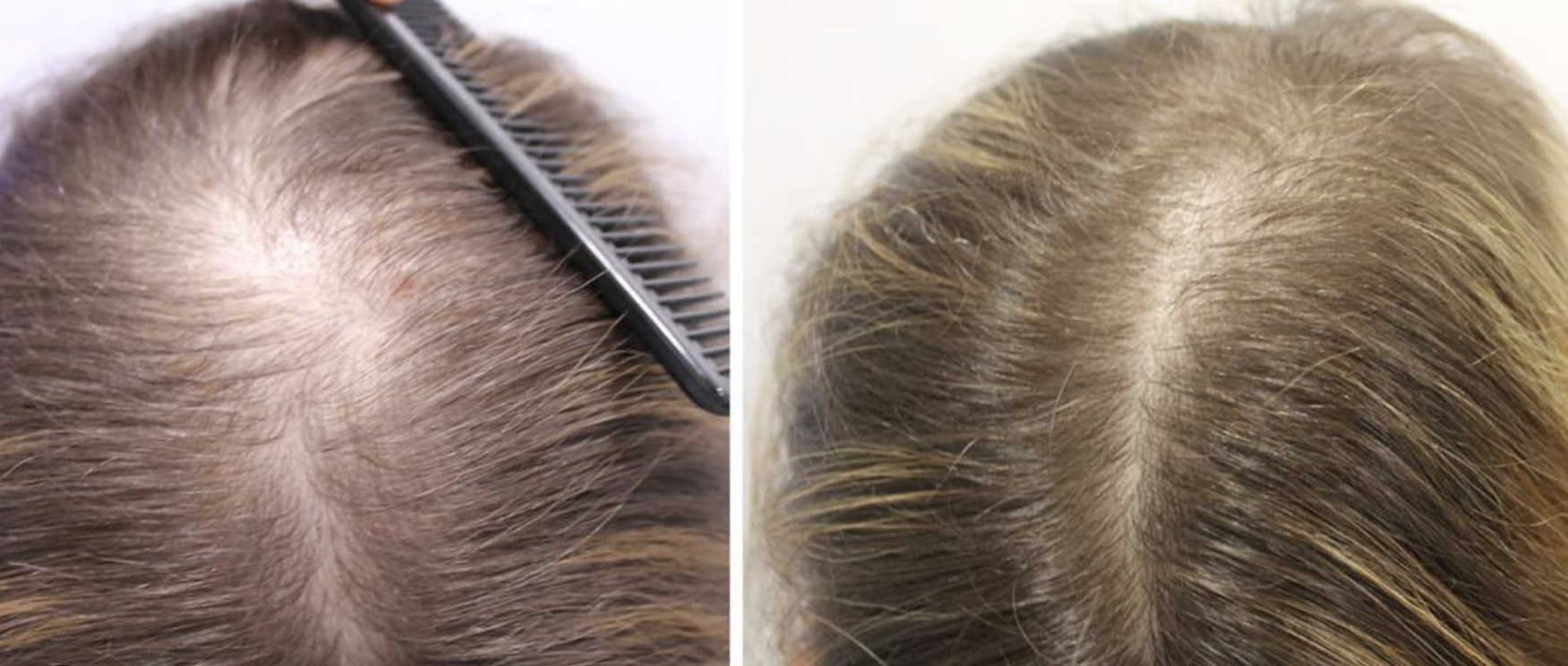 Doctor David Saceda Dermatologo Tricologo Alopecia Trasplante De Pelo Madrid Clinica Grupo Pedro Jaen Blog Noticias Tratamiento Alopecia Femenina Mujer Masculina Hombre Solucion Calvicie Madrid